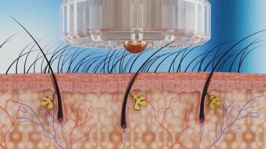 Easy touch Meso/Buteliukas su mikroadatiniu aplikatoriumi mezoterapijai, 1 vnt.